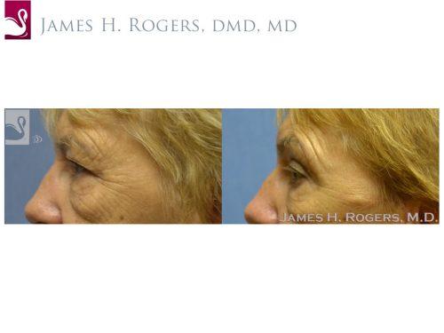 Eyelid Surgery Case #53613 (Image 3)