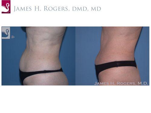 Abdominoplasty (Tummy Tuck) Case #22904 (Image 3)