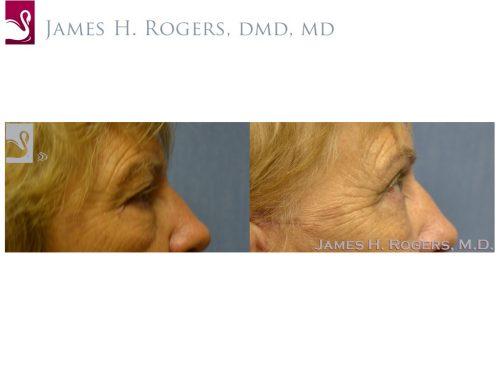 Eyelid Surgery Case #53613 (Image 2)