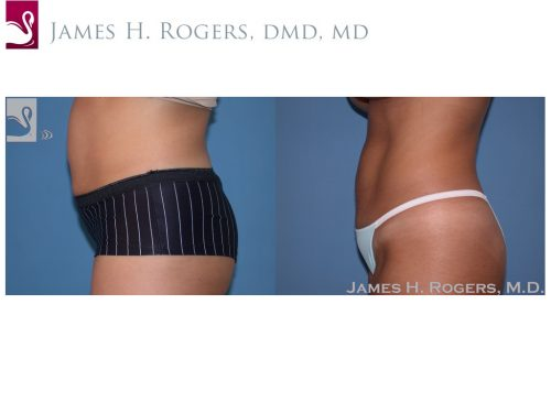 Abdominoplasty (Tummy Tuck) Case #30130 (Image 3)