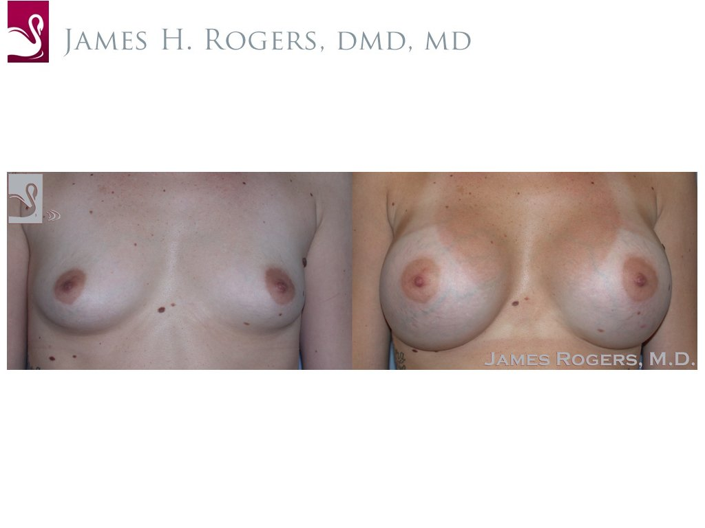 Breast Augmentation Case #29092 (Image 1)
