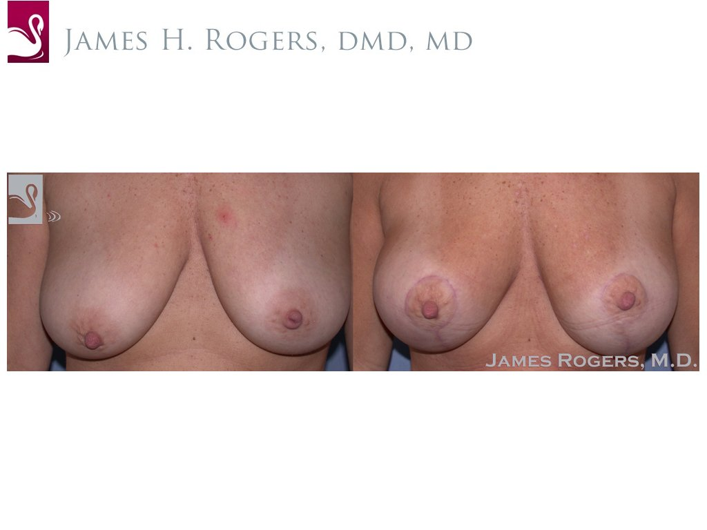 Breast Augmentation with Mastopexy (Breast Lift) Case #40170 (Image 1)