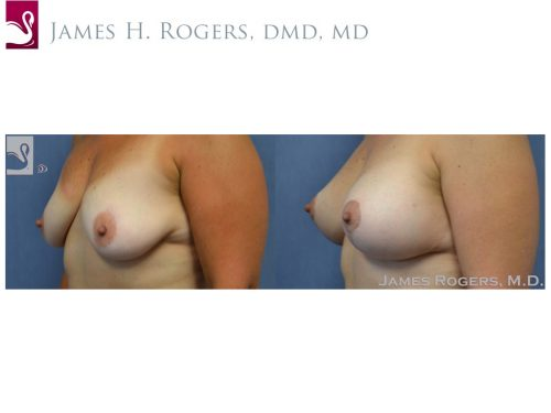 Breast Augmentation with Mastopexy (Breast Lift) Case #50139 (Image 3)