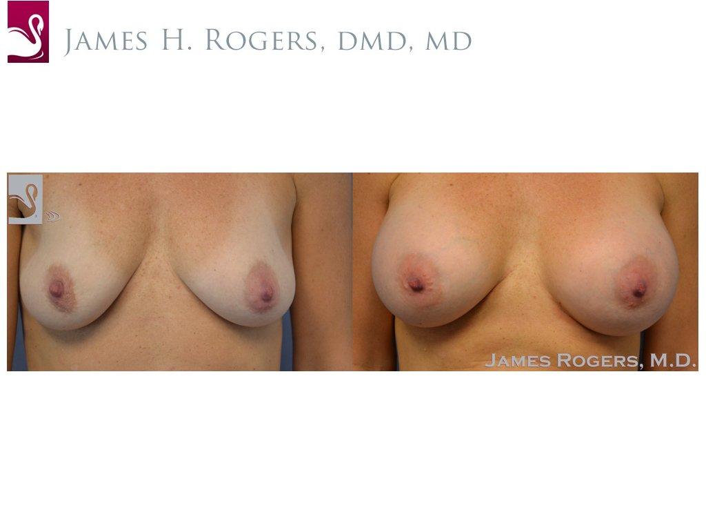 Breast Augmentation Case #51001 (Image 1)