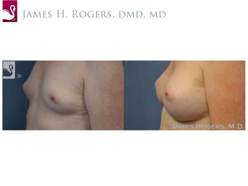 Breast Augmentation Case #53088 (Image 3)