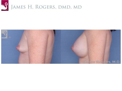 Breast Augmentation Case #54396 (Image 3)