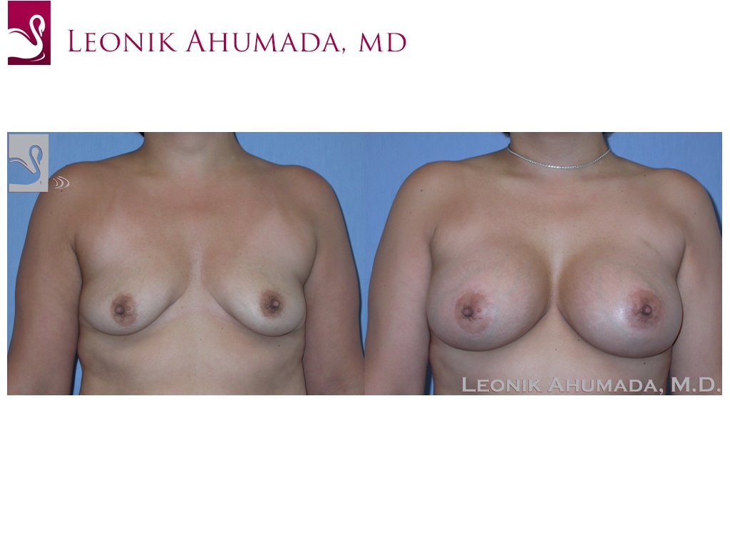 Breast Augmentation Case #37241 (Image 1)