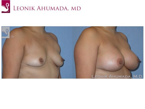 Breast Augmentation Case #37241 (Image 2)