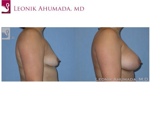 Breast Augmentation Case #37241 (Image 3)
