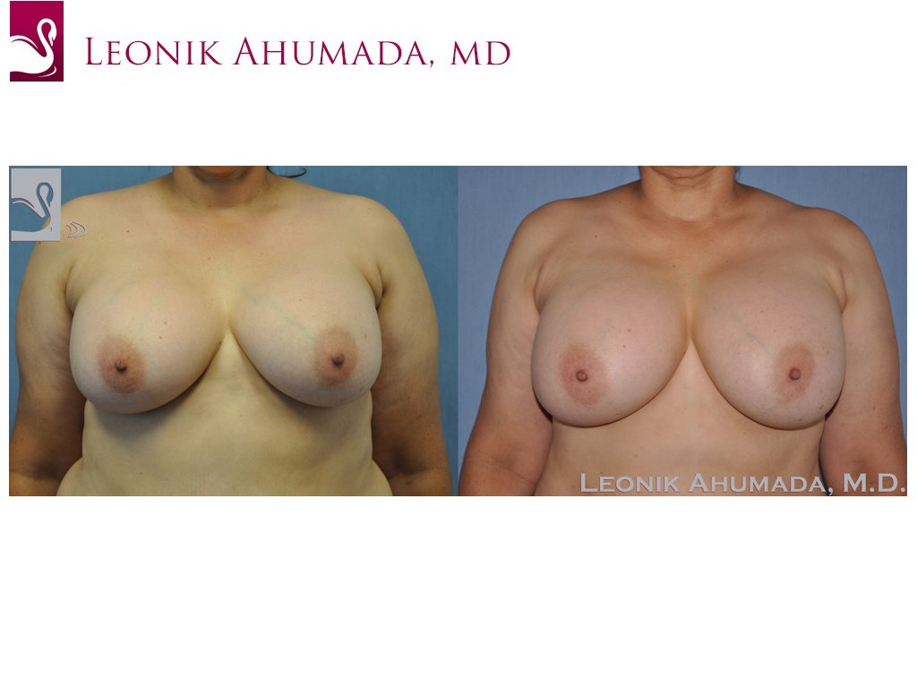 Breast Revisions Case #44722 (Image 1)