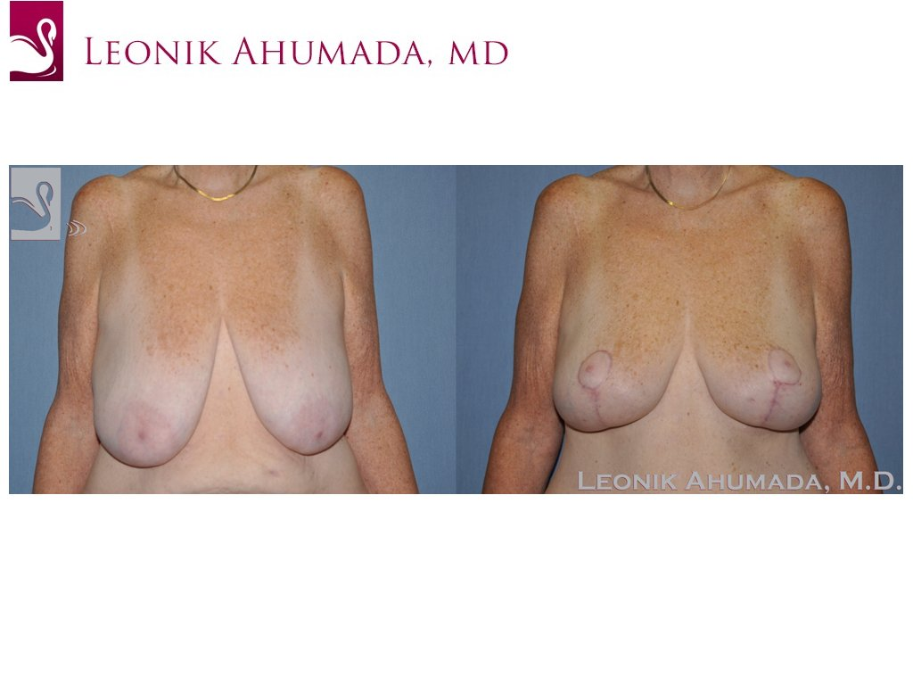 Female Breast Reduction Case #49642 (Image 1)