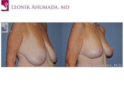Female Breast Reduction Case #49642 (Image 2)