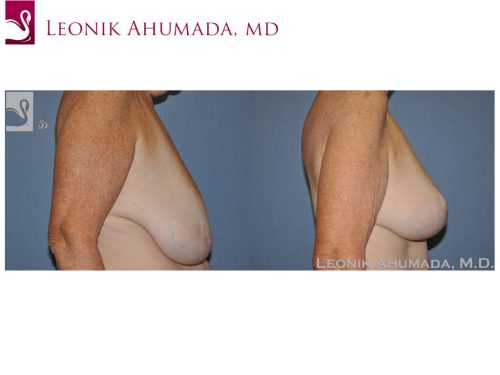 Female Breast Reduction Case #49642 (Image 3)