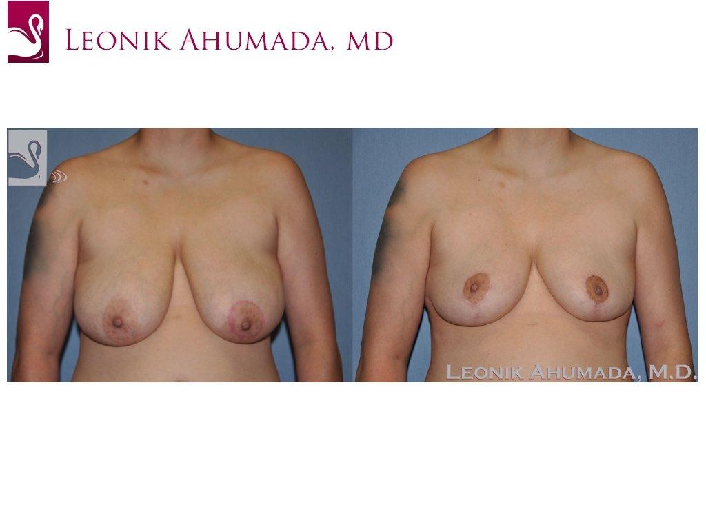Female Breast Reduction Case #51181 (Image 1)