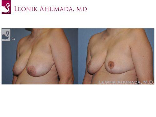 Female Breast Reduction Case #51181 (Image 2)
