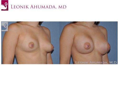 Breast Augmentation Case #51499 (Image 2)