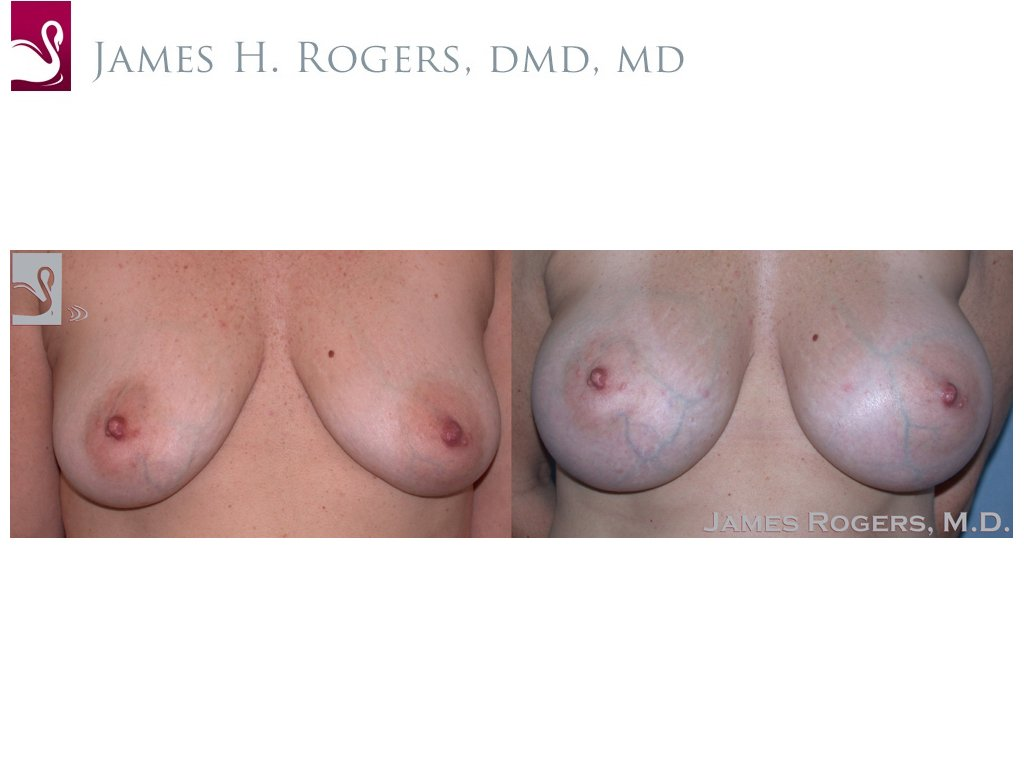 Breast Augmentation Case #45650 (Image 1)