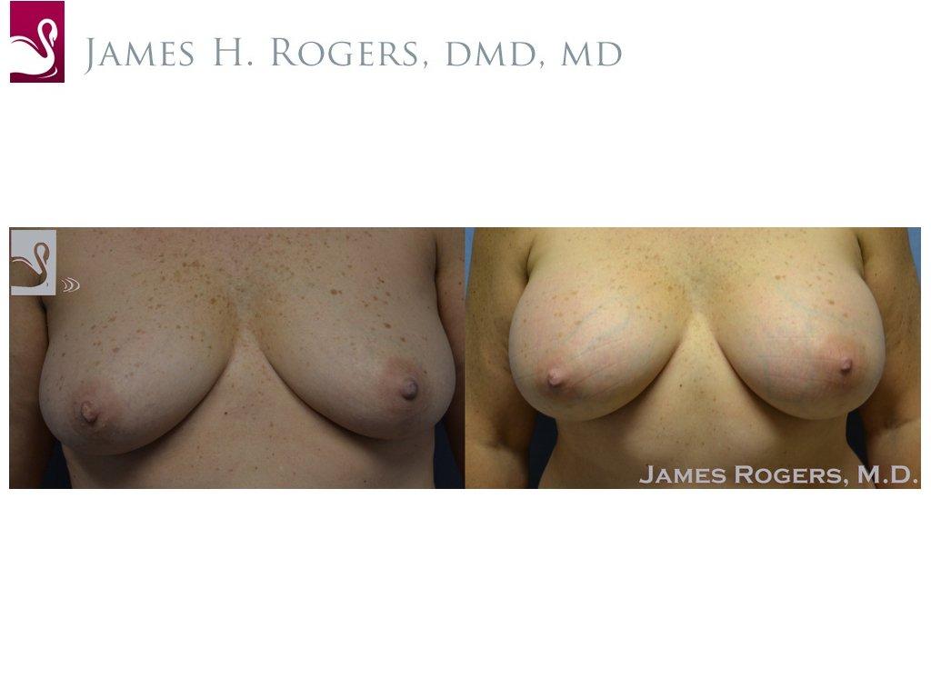 Breast Augmentation Case #52304 (Image 1)