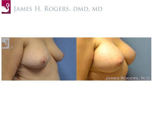 Breast Augmentation Case #52304 (Image 2)