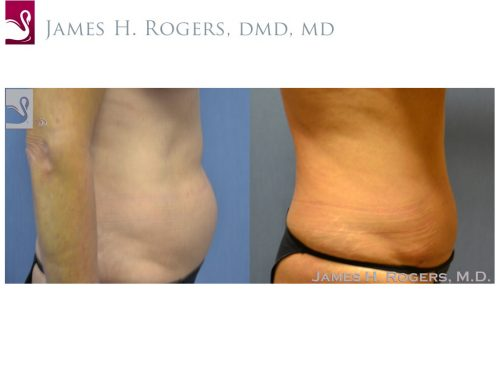 Abdominoplasty (Tummy Tuck) Case #34612 (Image 2)