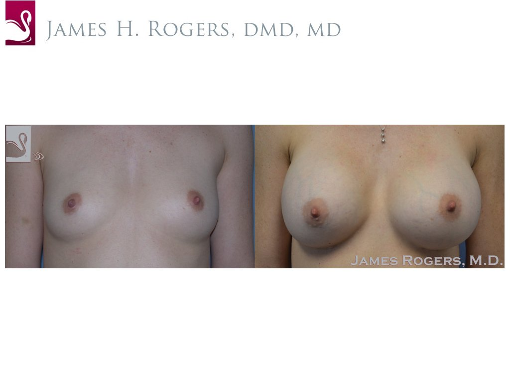 Breast Augmentation Case #35876 (Image 1)