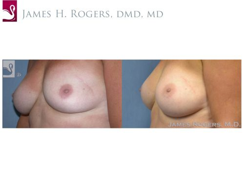 Breast Lift (Mastopexy) Case #41320 (Image 3)