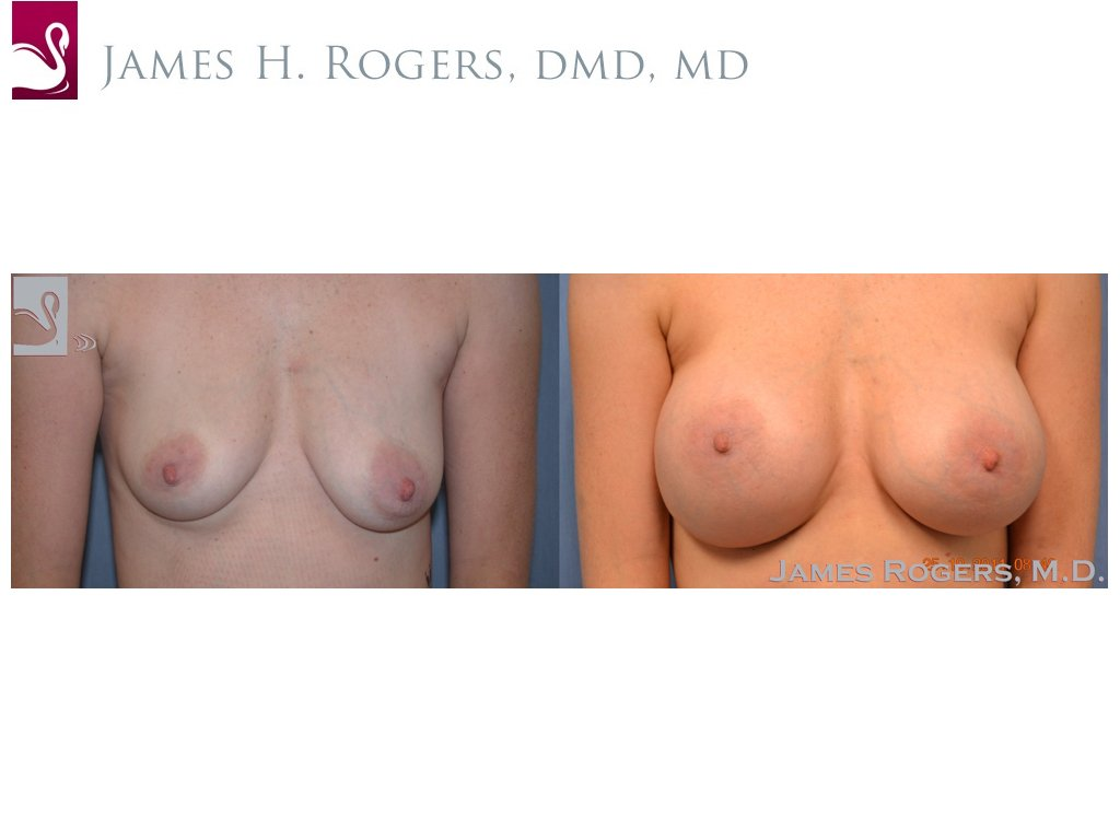 Breast Augmentation Case #48425 (Image 1)
