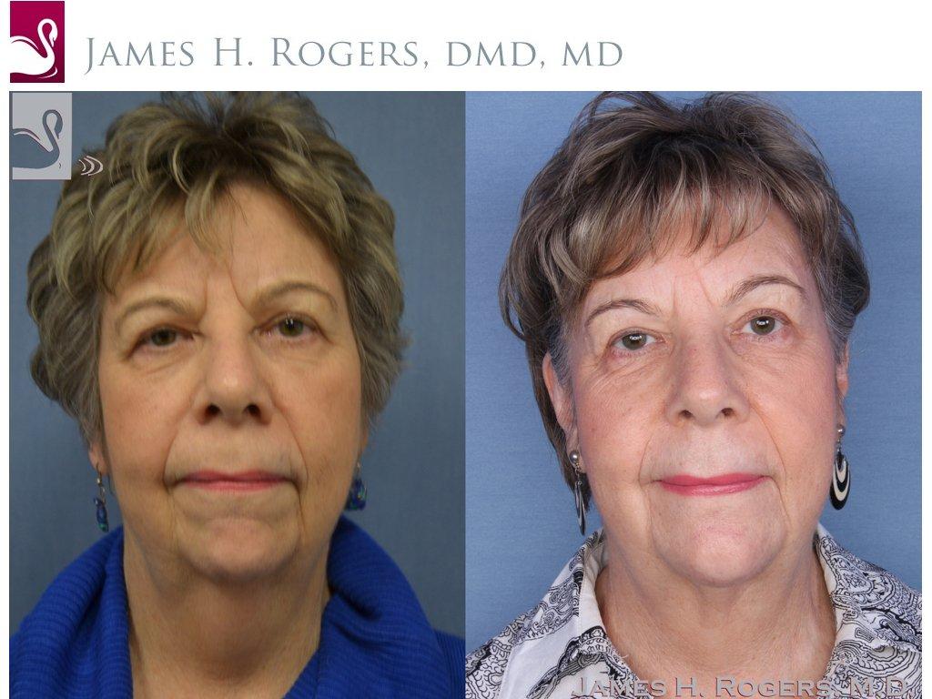 Facial Implants Case #54918 (Image 1)