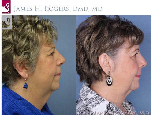 Facial Implants Case #54918 (Image 2)