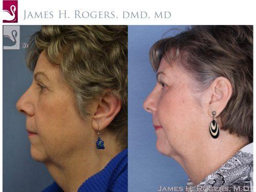Facial Implants Case #54918 (Image 3)