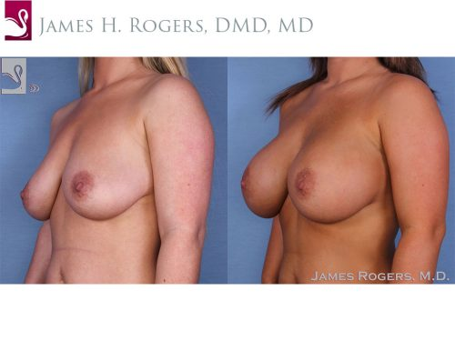 Breast Augmentation Case #47717 (Image 2)
