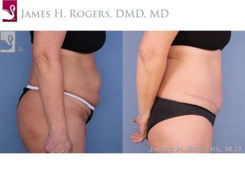 Abdominoplasty (Tummy Tuck) Case #50016 (Image 3)