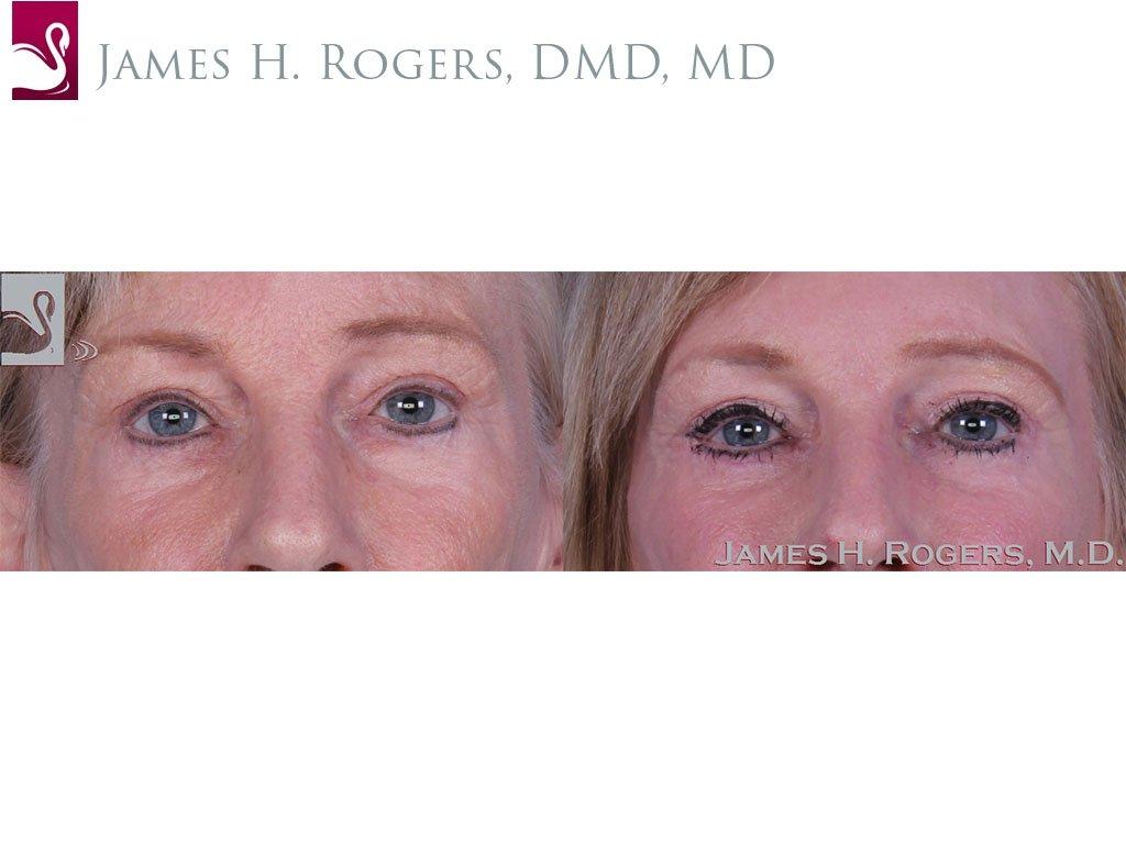 Eyelid Surgery Case #11070 (Image 1)
