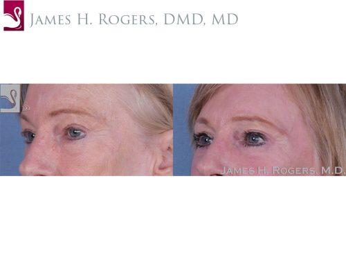 Eyelid Surgery Case #11070 (Image 2)