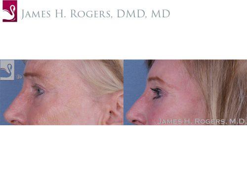 Eyelid Surgery Case #11070 (Image 3)