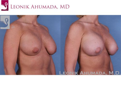 Breast Revisions Case #37955 (Image 2)