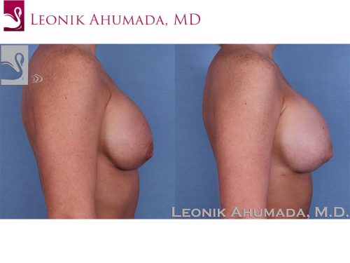 Breast Revisions Case #37955 (Image 3)