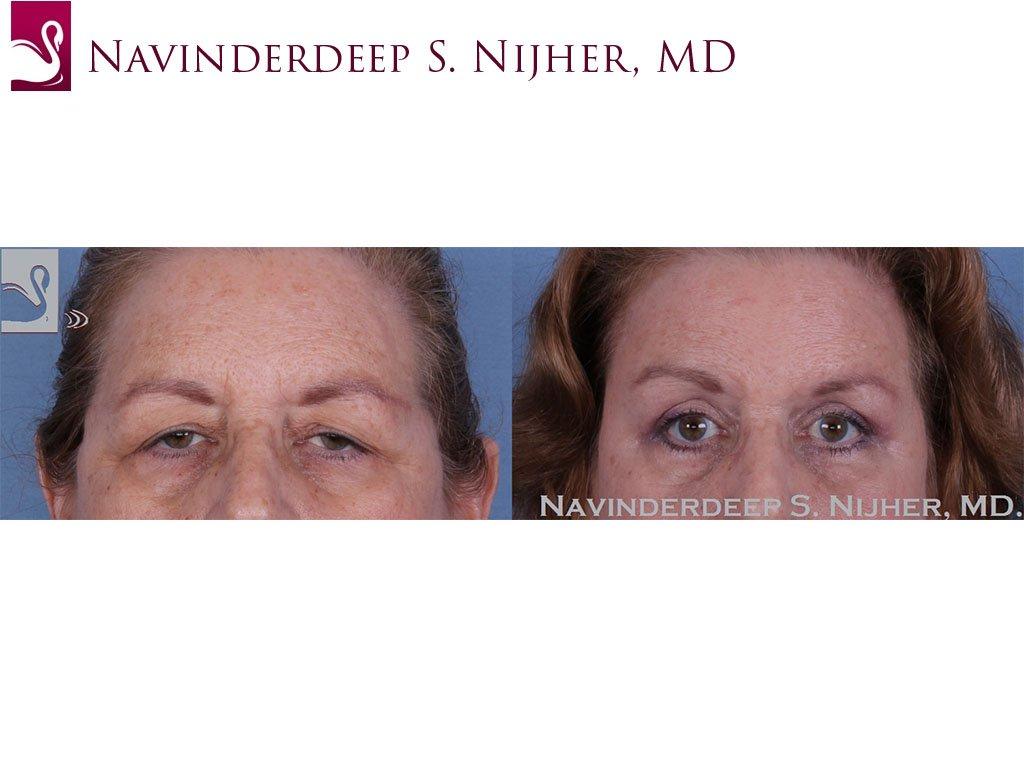 Eyelid Surgery Case #49304 (Image 1)