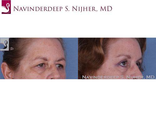 Eyelid Surgery Case #49304 (Image 2)