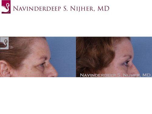 Eyelid Surgery Case #49304 (Image 3)