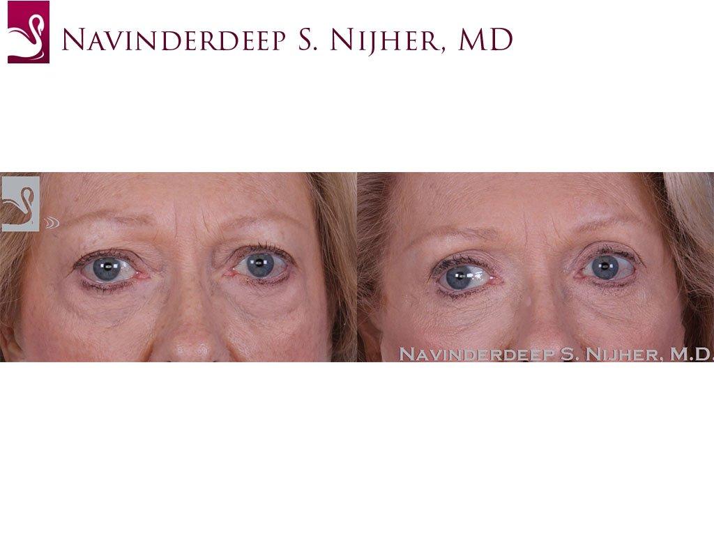 Eyelid Surgery Case #57951 (Image 1)