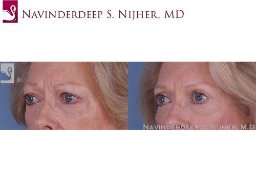 Eyelid Surgery Case #57951 (Image 2)