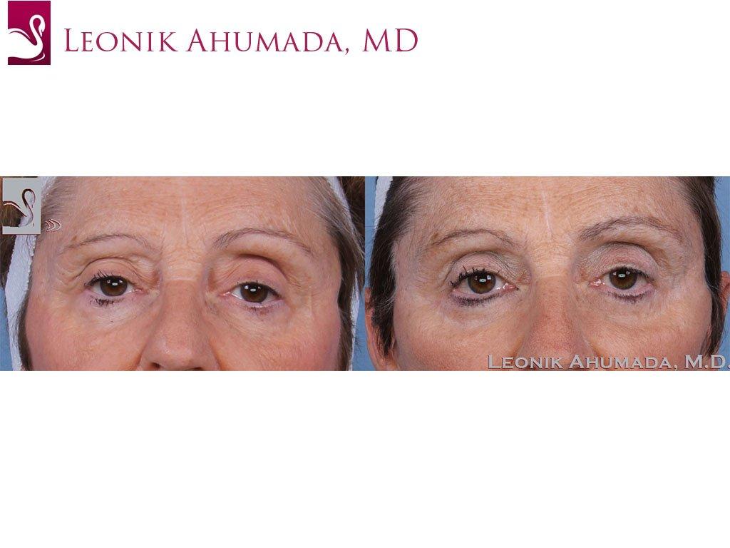 Eyelid Surgery Case #58147 (Image 1)