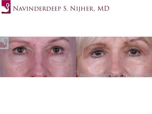 Before and after image of a real plastic surgery procedure performed by Dr. Nijher.