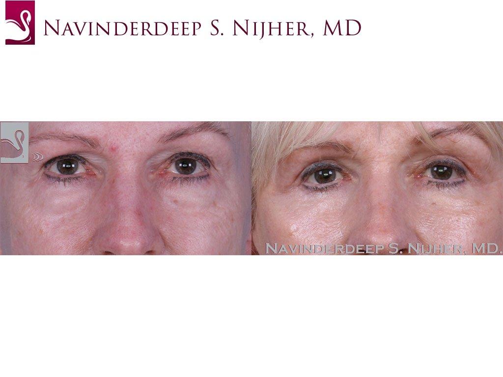 Eyelid Surgery Case #58616 (Image 1)