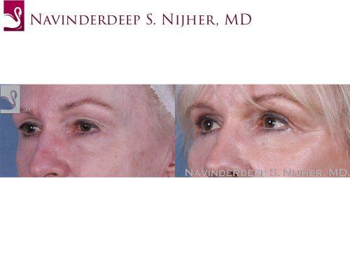 Eyelid Surgery Case #58616 (Image 2)