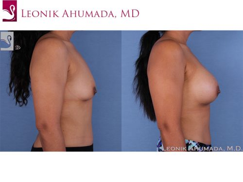 Breast Augmentation Case #58741 (Image 3)