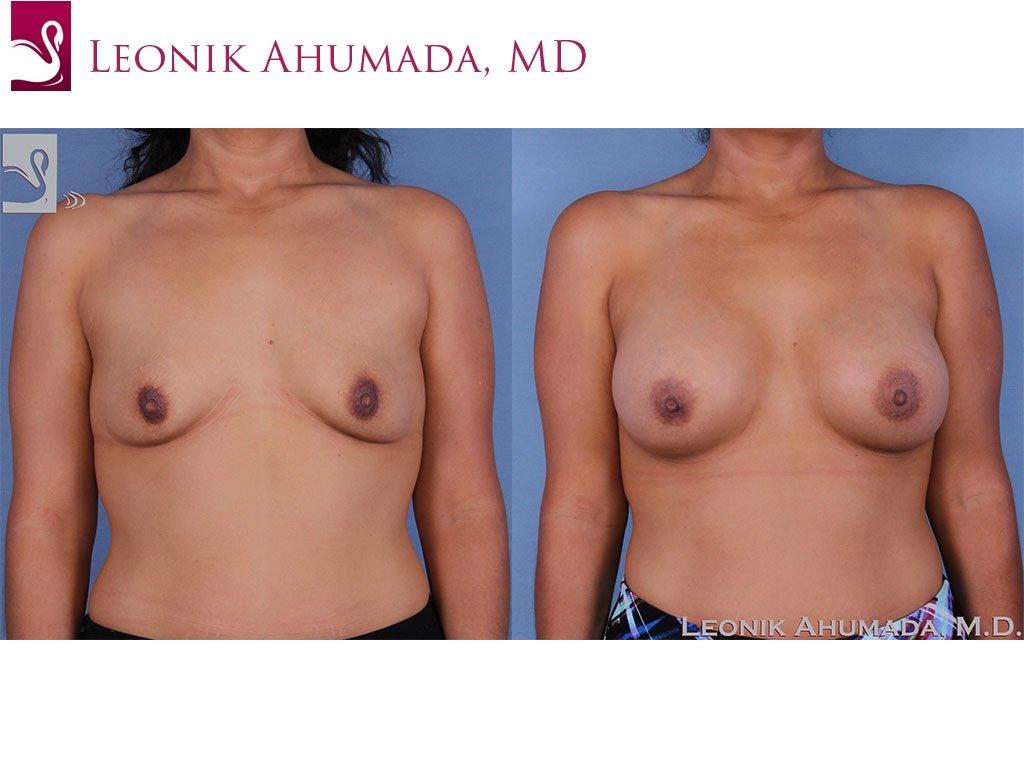 Breast Augmentation Case #58741 (Image 1)