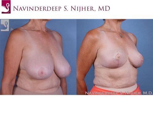Female Breast Reduction Case #59813 (Image 2)