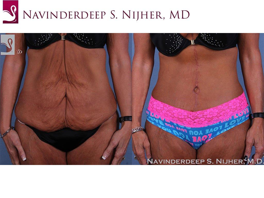 Abdominoplasty (Tummy Tuck) Case #60008 (Image 1)